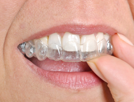 $500 off your Full Invisalign Case