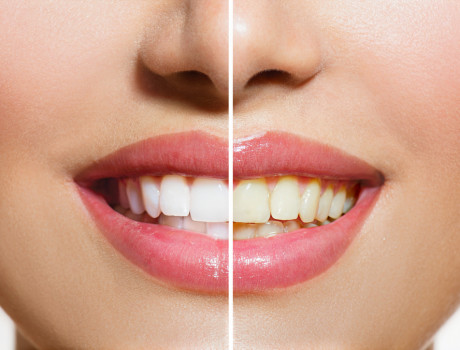 It's never too late to whiten your teeth!